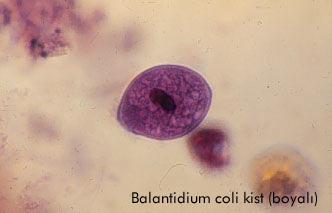 Balantidium coli caracteristicas principales